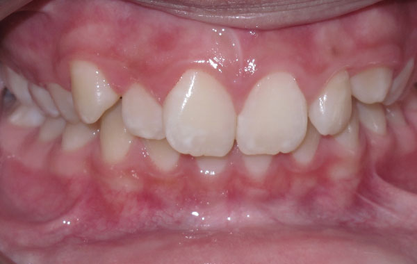 Orthodontics Before-After
